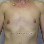 Patient 5 - About 6 months post-op, Keyhole