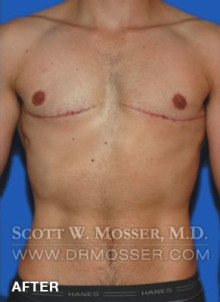 FTM Top Surgery Double Incision