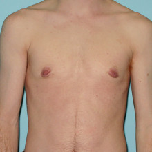 Patient 1 – Keyhole Top Surgery (w/o Nipple Reduction). 60 Days post-op (right.) Age: 27