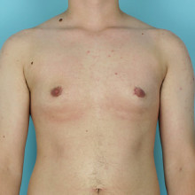 Patient 5 – Peri-Areolar Top Surgery. 90 Days post-op (right.) Age: 28