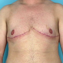 Patient 6 – Double Incision Top Surgery with Free Nipple Grafts. 21 Days post-op (right.) Age: 30
