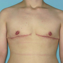 Patient 8 – Double Incision Top Surgery with Free Nipple Grafts. 22 Days post-op (right.) Age: 30