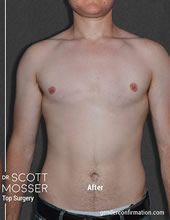 Dr Scott Mosser Ftn Ftm Top Surgery San Francisco California