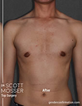Dr Scott Mosser Ftn Ftm Top Surgery San Francisco California
