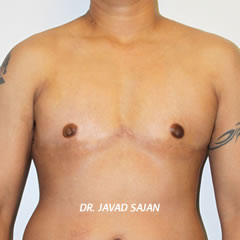 Dr. Sajan Top Surgery Result